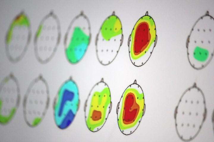 Neurofeeback qEEG Heatmap